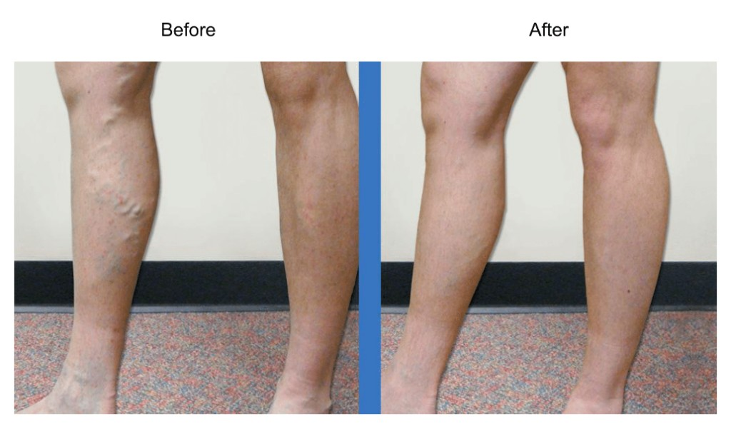 What to Expect From Sclerotherapy