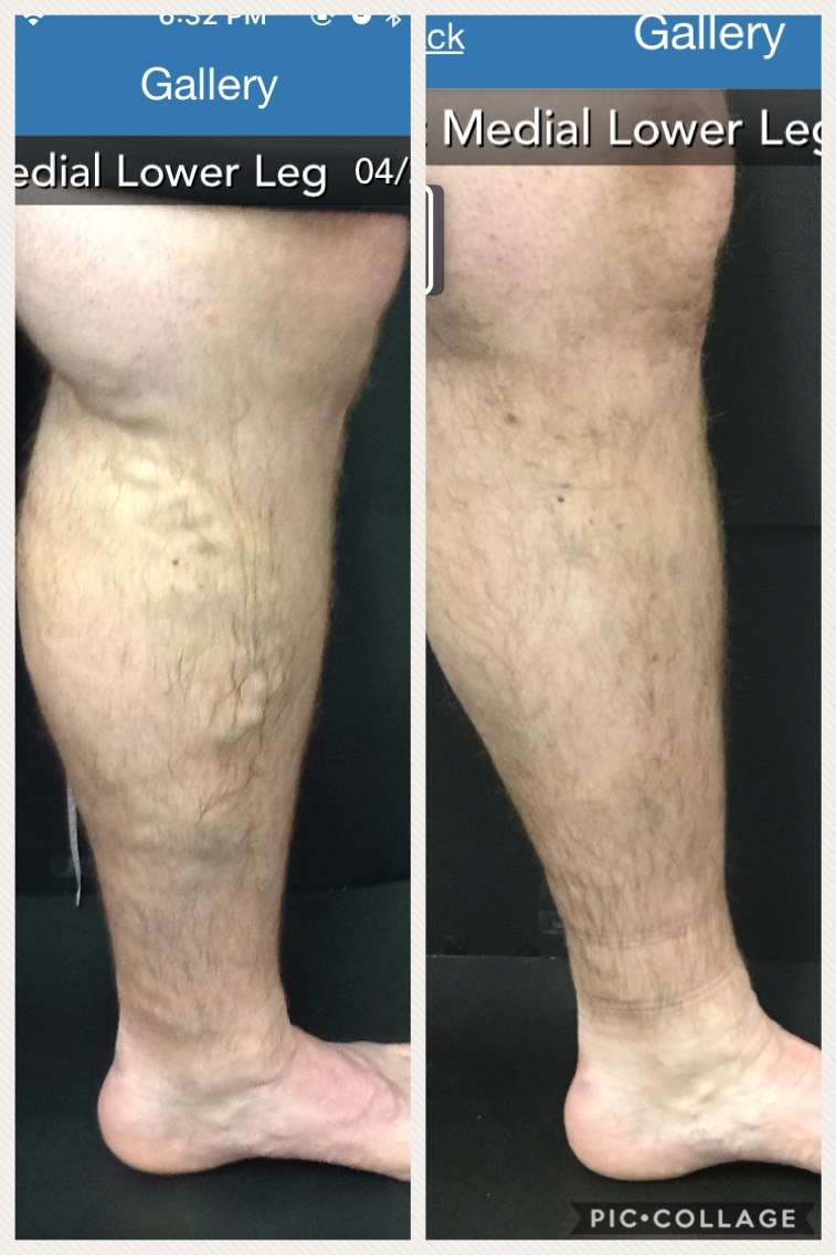Evolution of Vein Treatments Before and After Vein Treatments