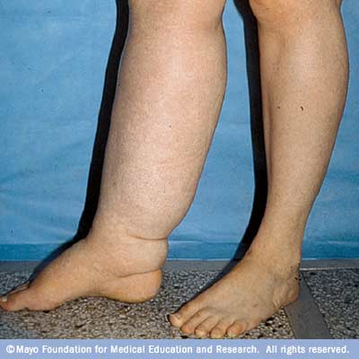 Lymphedema – Fluid Retention And Swelling