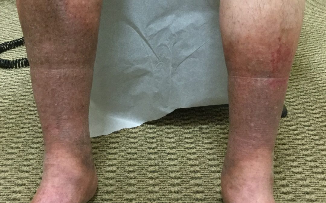 Why Do I Have Brown Spots on My Legs?