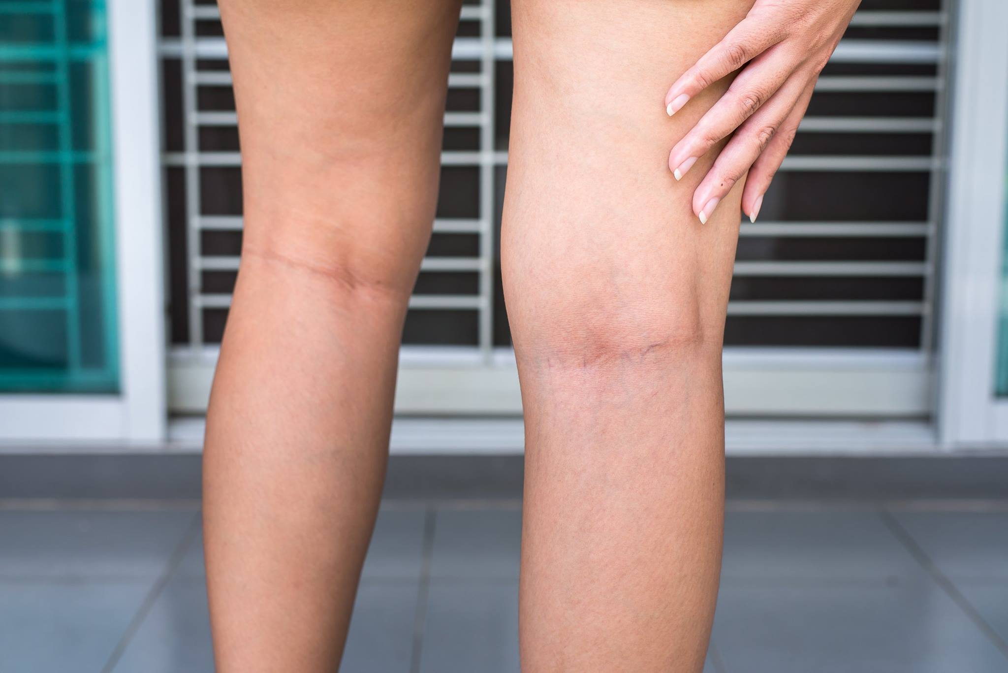 Leg Swelling – Your Veins Could Be the Cause