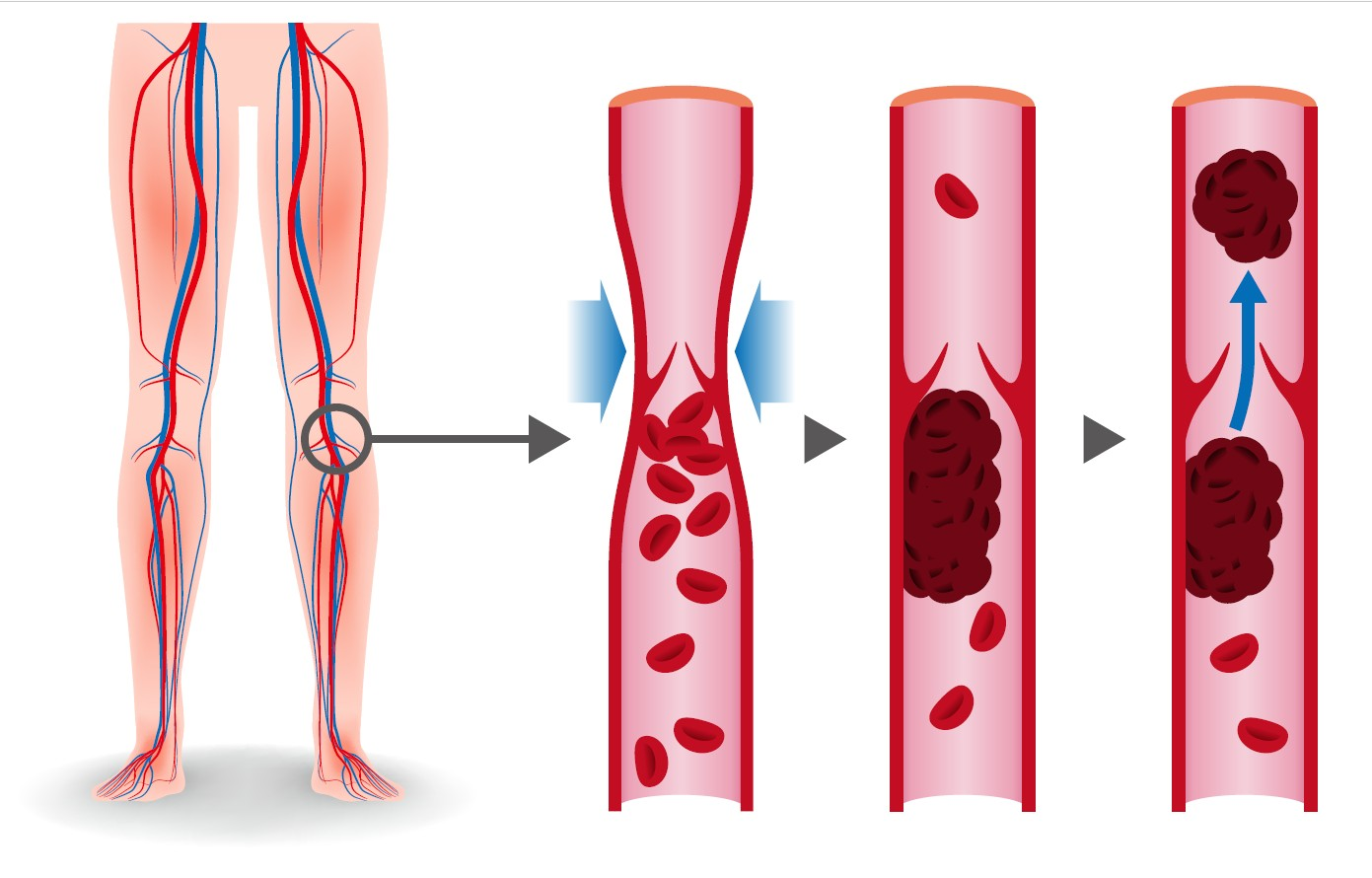 Deep Vein Problems and Solutions