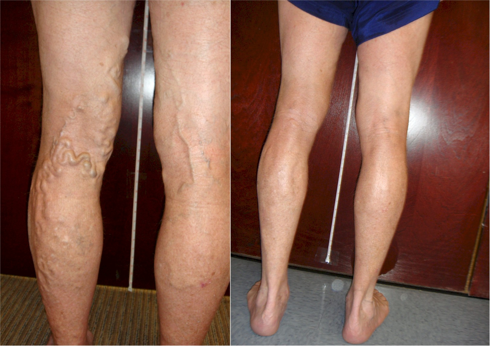 5 Tips for Relieving Painful Varicose Veins