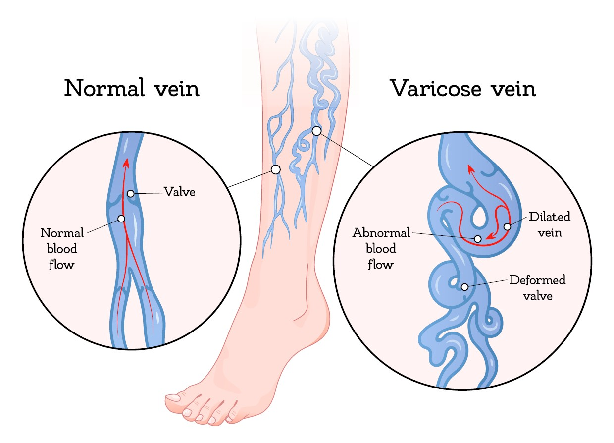 Spend some time this fall saying goodbye to your uncomfortable, unattractive varicose veins for good!