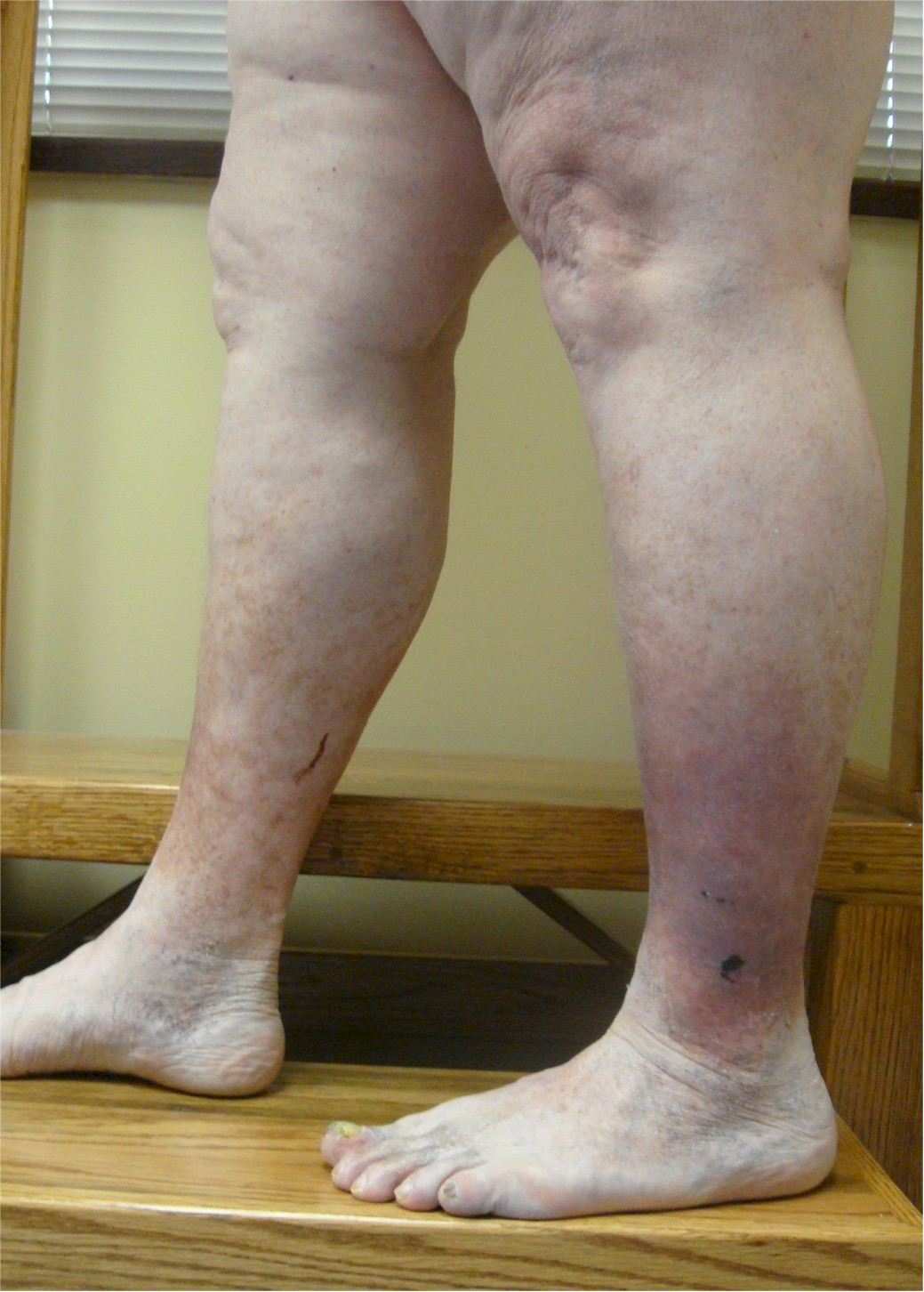 What is Venous Eczema?