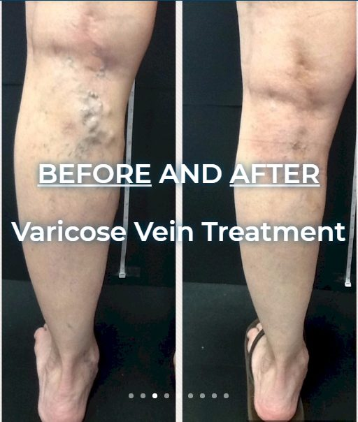 4 Ways Vein Treatment can Change Your Life for the Better