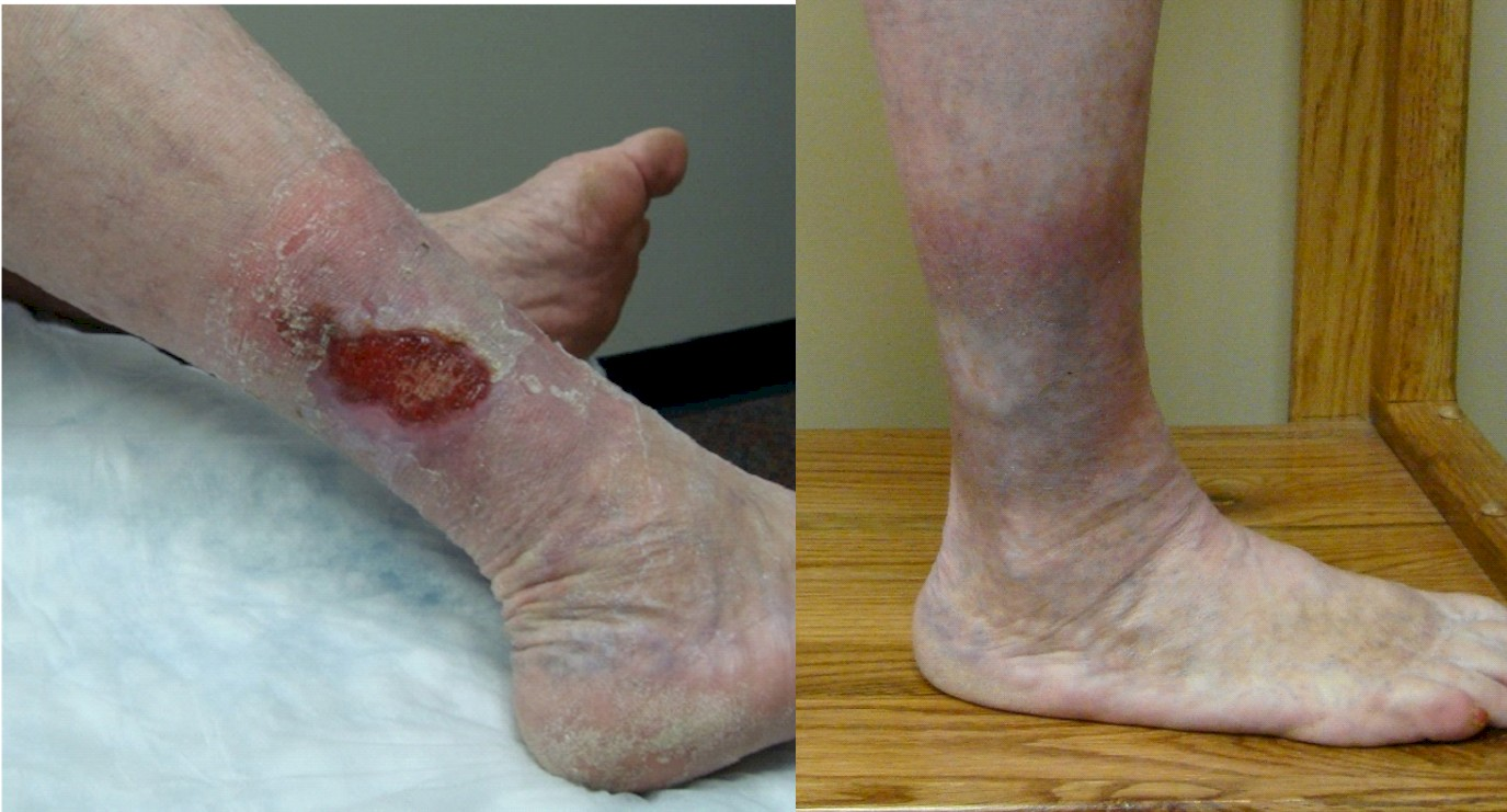 Venous Insufficiency – The Most Common Cause Of Lower-Leg Ulcers