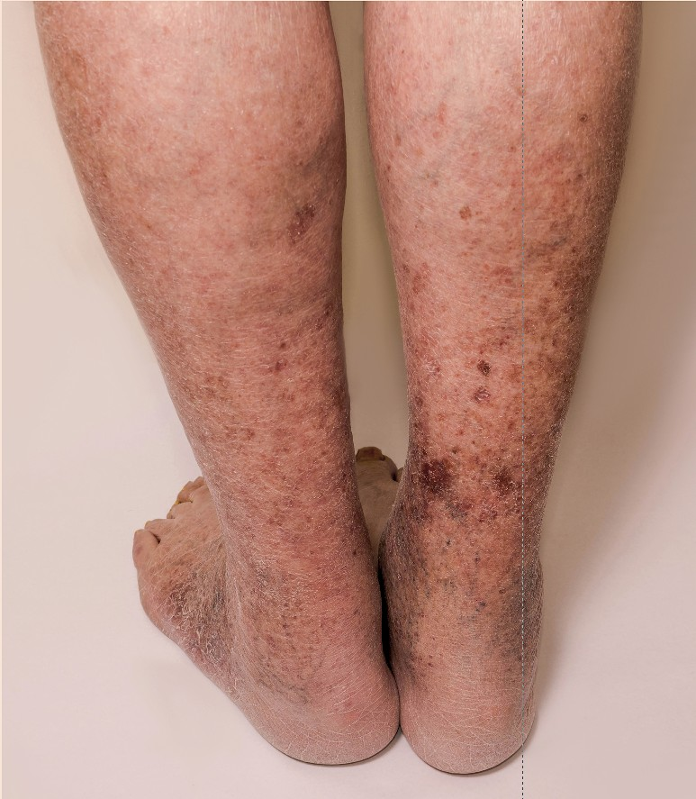 What Is Post Thrombotic Syndrome (PTS)?