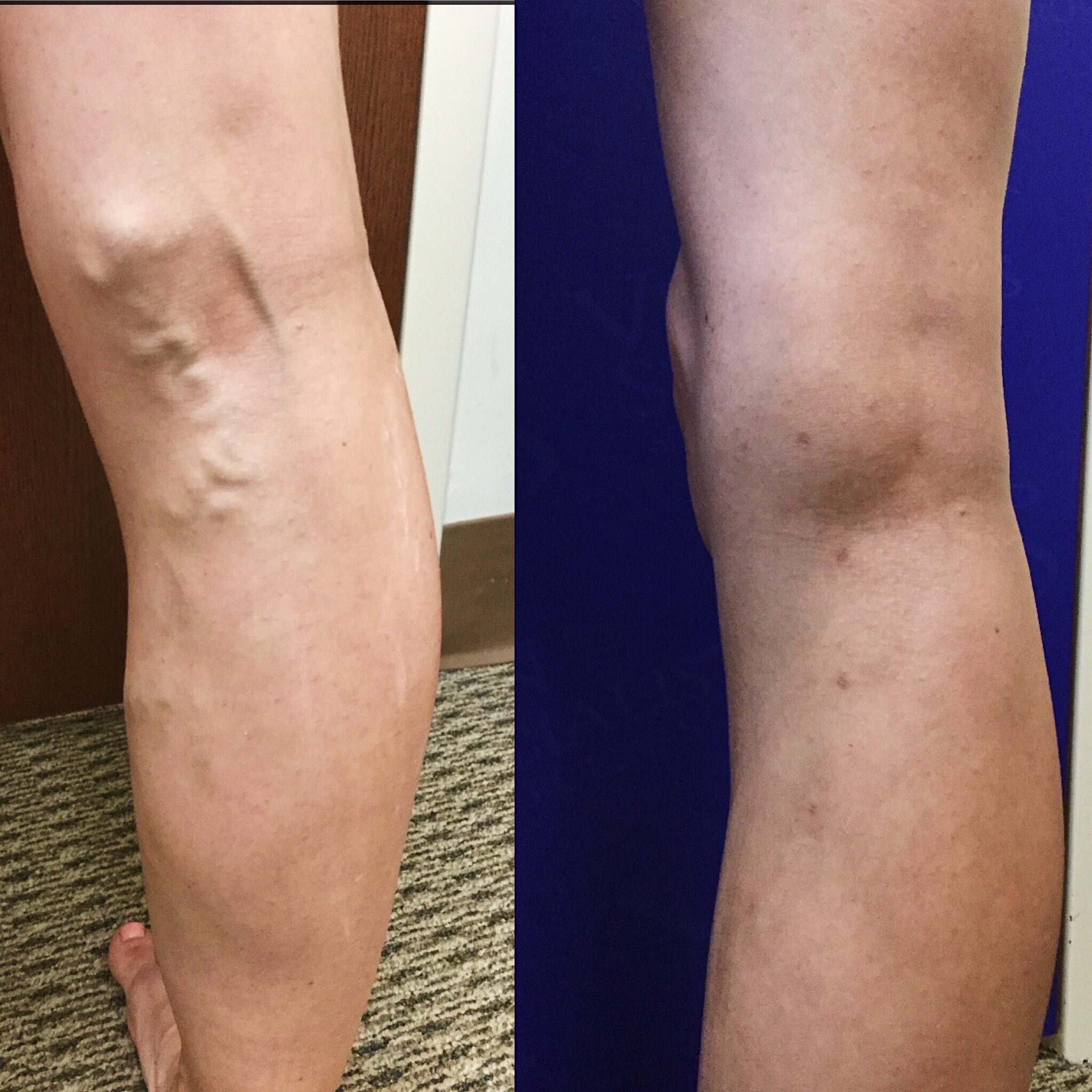 Varicose Veins and Cold Weather