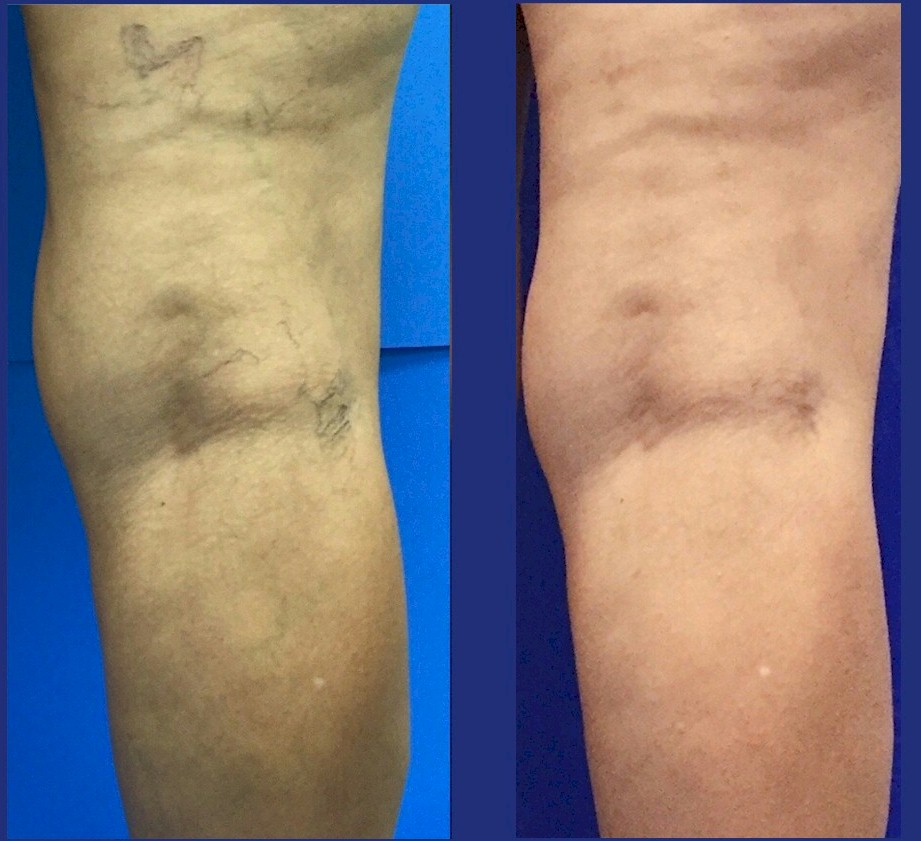 Vein Specialists of the Carolinas: Before and After Slideshow!