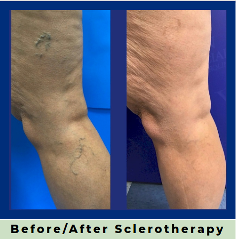 Last Week To Take Advantage Of Our 10% Off Sclerotherapy Special