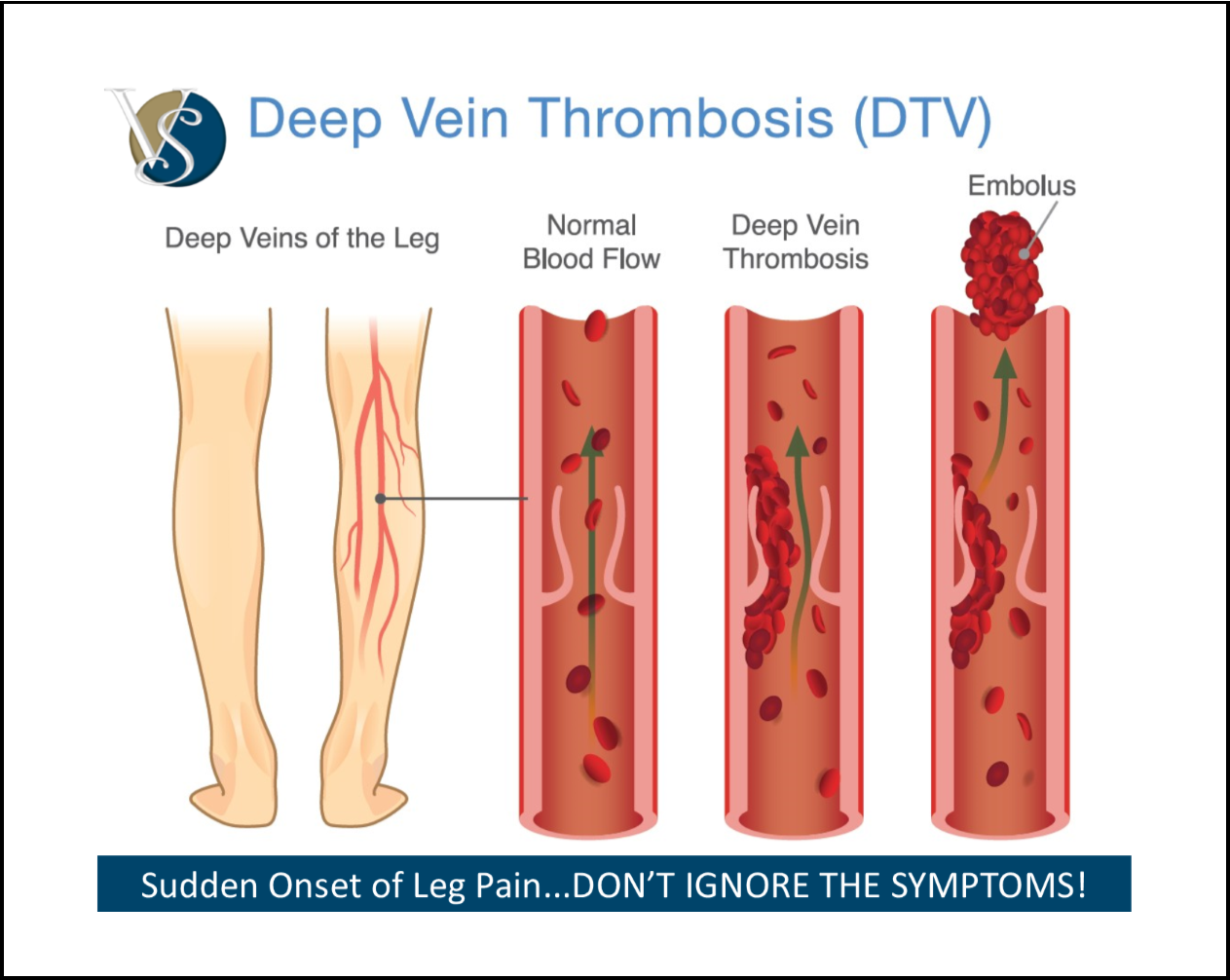 A Blood Clot In A Deep Vein Is A  Serious Condition