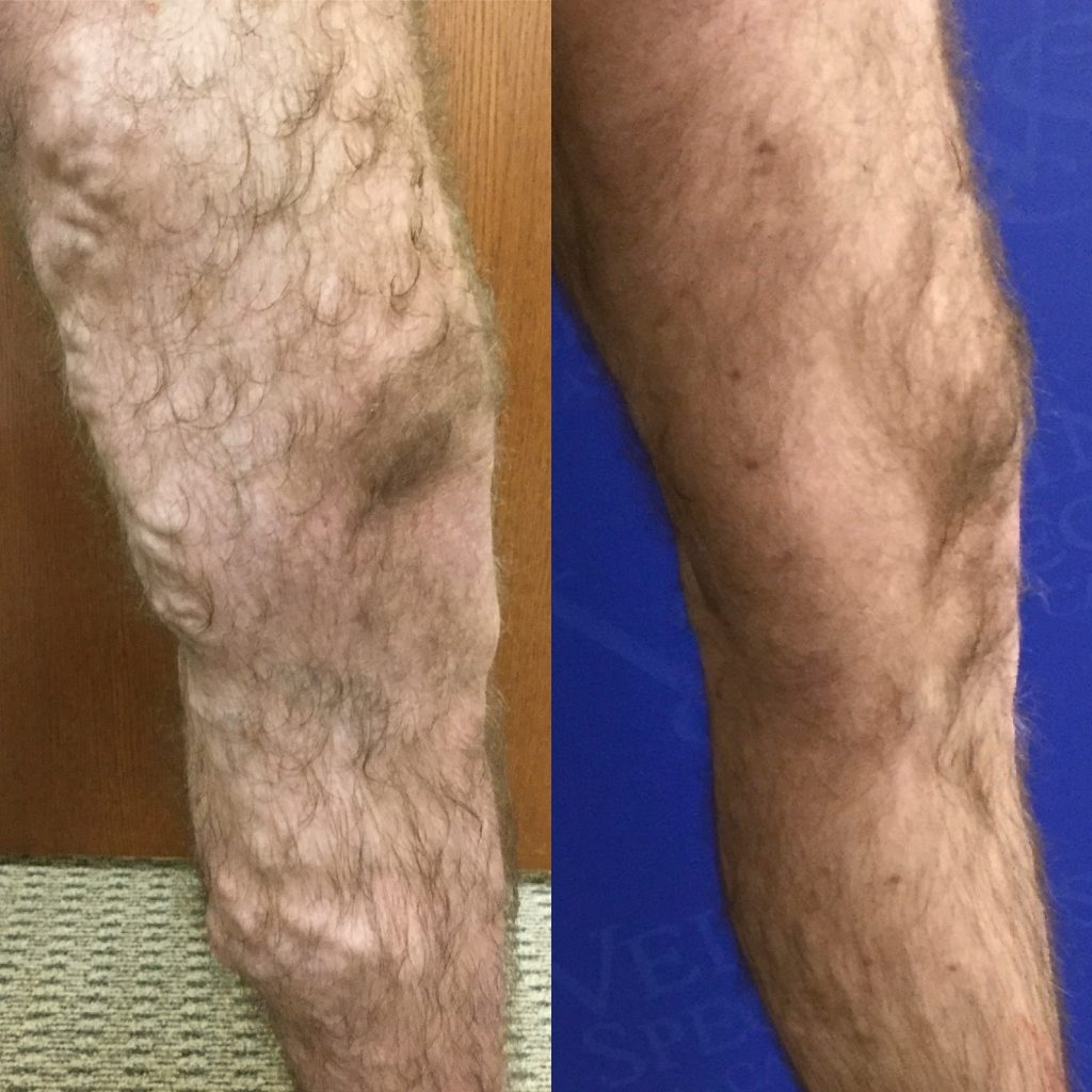 Before and After Vein Treatment Photos, Vein Specialists of the Carolinas