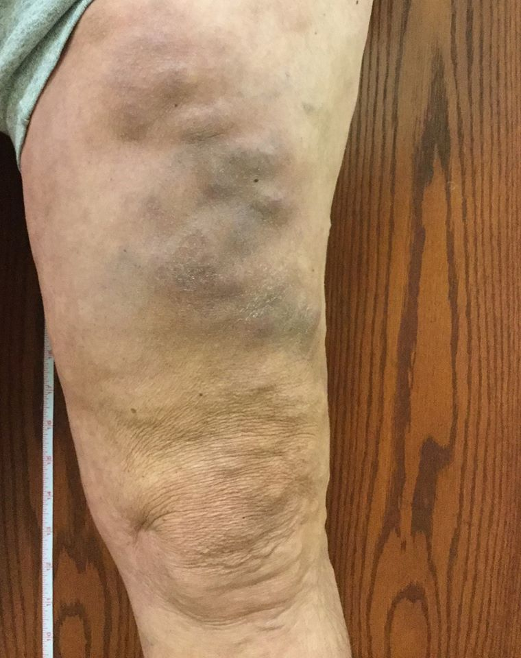 What is Phlebitis?