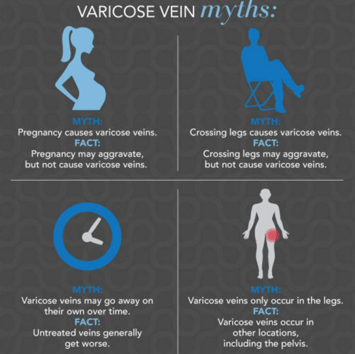 Check Out These Myths About Varicose Veins.