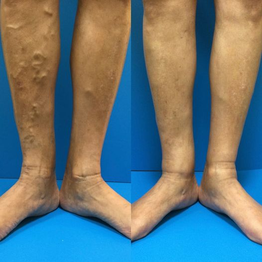 Another awesome before and after picture of one of our patients!