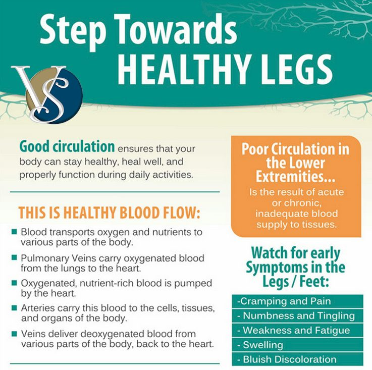Is it time for you to take a step toward healthy legs?