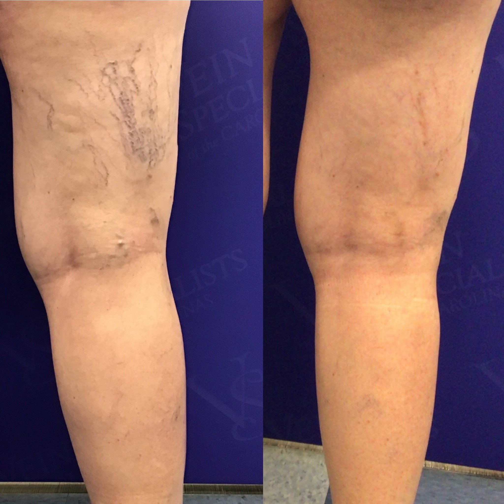 It is Transformation Tuesday – Vein Specialists of the Carolinas